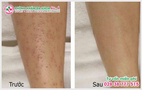 Bài biết dưới đây sẽ giúp ích cho bạn trong việc phát hiện để có cách chữa trị và chăm sóc vùng da bị dày sừng nang lông tốt hơn.