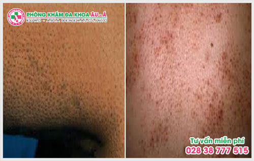 Bệnh dày sừng nang lông có chữa được không?