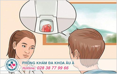 Biểu hiện và dấu hiệu nhận biết bệnh trĩ nội và trĩ ngoại