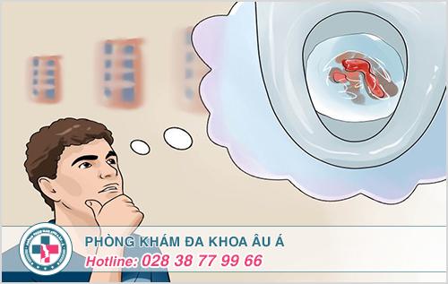 Các dấu hiệu triệu chứng bệnh trĩ ngoại độ 1 2 3 và biểu hiện rõ ràng