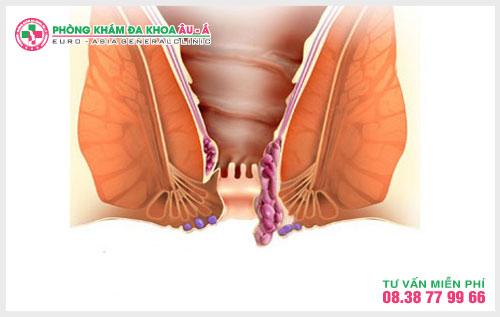 Lòi búi trĩ là gì và cách chữa bệnh trĩ lòi