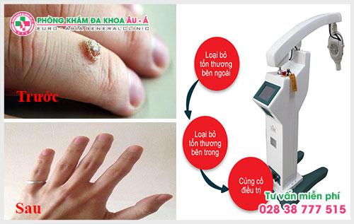 ALA - PDT là cách trị mụn cóc ở tay có thể khắc phục được những hạn chế của các phương pháp truyền thống như đốt điện lạnh, đốt laser, dùng thuốc,…