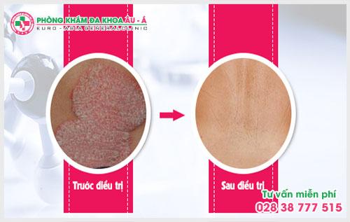 việc nhận biết các dấu hiệu viêm da sẽ giúp người bệnh có cách điều trị kịp thời nhằm tránh các biến chứng đáng tiếc xảy ra
