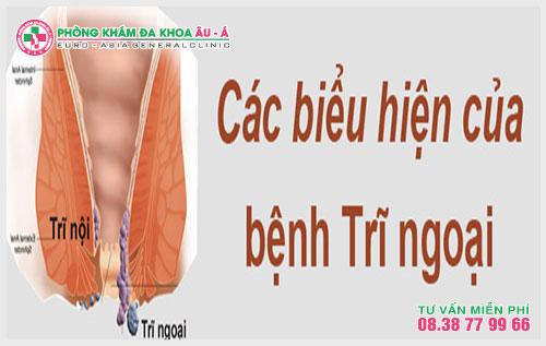 Theo các chuyên gia bệnh học trĩ ngoại là hiện tượng các tĩnh mạch nằm gần hậu môn sưng lên hình thành nên búi trĩ, người bệnh hoàn toàn có thể sờ thấy.