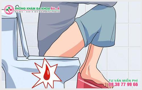 Cẩn trọng khi đi ngoài ra cục máu đông là điều mà được rất nhiều người quan tâm bởi hiện nay người bệnh có thể lường trước được những mối nguy hại của nó gây ra.