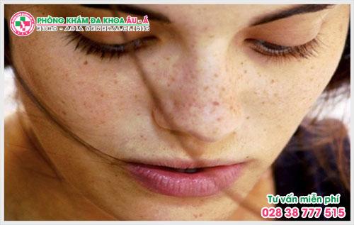 Xuất hiện các vết đốm li ti sẫm màu trên hai gò má là dấu hiệu triệu chứng bệnh trị nám da thường gặp