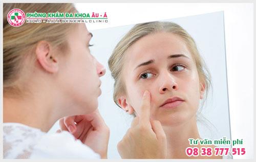 Địa chỉ chữa bệnh dị ứng da ở TPHCM