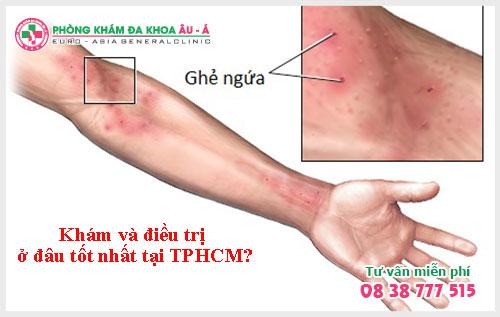 Khám bệnh ghẻ ở đâu tốt nhất TPHCM?