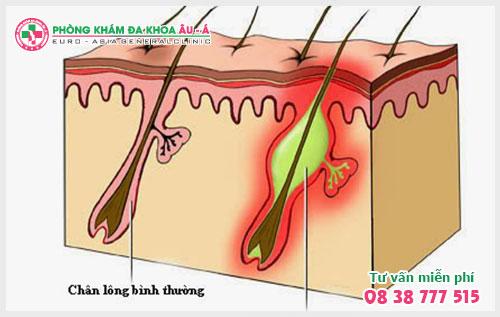 Kinh nghiệm chữa dày sừng nang lông