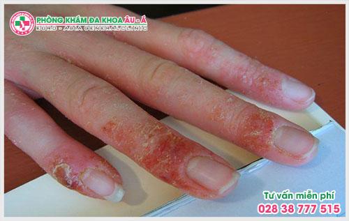 Da Liễu Âu Á là một trong những địa chỉ uy tín, tin tưởng vì đã điều trị thành công cho hàng trăm bệnh nhân mắc chứng bệnh chàm ở đầu ngón tay.