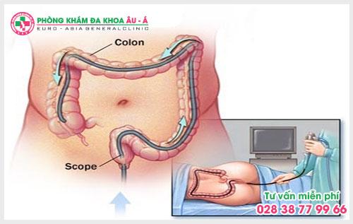 Máy soi hậu môn trực tràng Dr Camscope là một bước vô cùng quan trọng trong việc thăm khám, xác định bệnh lý cụ thể cũng như mức độ tình trạng bệnh.
