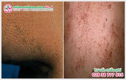 Một số mẹo chữa bệnh dày sừng nang lông dưới đây sẽ giúp ích cho bạn trong việc ngăn chặn, phòng tránh bệnh một cách hiệu quả và an toàn.