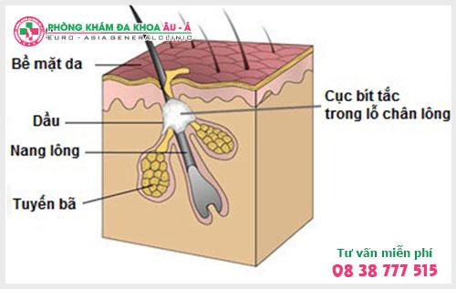 Mẹo chữa bệnh dày sừng nang lông hiệu quả