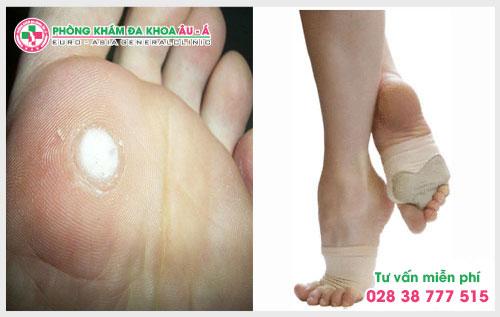 Nhận biết mụn cóc ở chân và cách điều trị