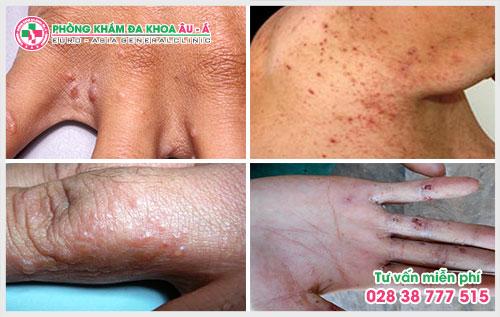 Trên bề mặt da xuất hiện những vết đỏ, nổi lên những mụn nước rất giống như những vết bỏng đây là triệu chứng bệnh ghẻ phỏng
