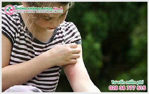 Những điều cần biết về triệu chứng của bệnh ngứa