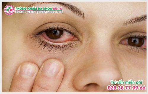Vì vậy, sùi mào gà ở mắt chữa như thế nào? Là điều mà được rất nhiều người mắc phải căn bệnh này đang quan tâm.