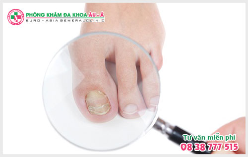 Tất tần tật về bệnh nấm móng tay