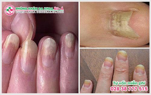 Nấm móng tay không chỉ là một trong những căn bệnh phổ biến về móng, gây mất thẩm mỹ cho đôi tay của bạn mà nó còn là tác nhân chính của nhiều biến chứng nguy hiểm.