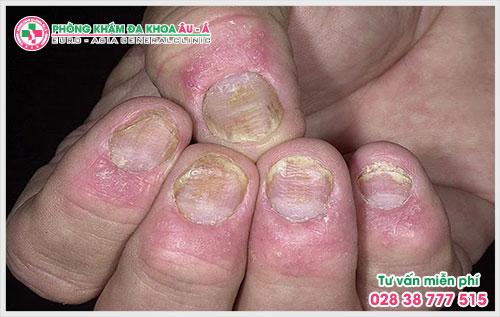 Bệnh vảy nến móng tay là căn bệnh da liễu thường gặp mà ai trong số chúng ta cũng có nguy cơ mắc phải khiến người bệnh cảm thấy mất tự tin, ngại giao tiếp với mọi người xung quanh.