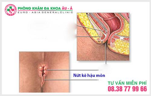 Nguyên nhân, triệu chứng và cách chữa viêm nứt kẽ ống thành hậu môn