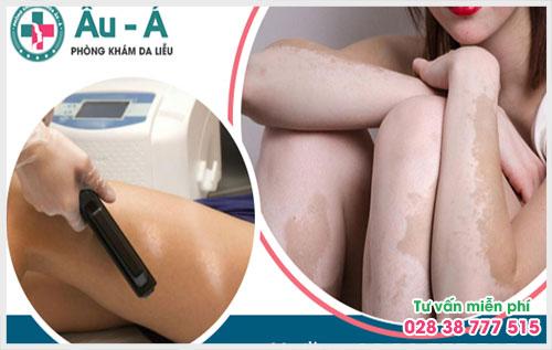 Bệnh bạch biến tuy không nguy hại nghiêm trọng tới sức khỏe nhưng lại là nỗi lo lớn với con người, đặc biệt là phái nữ vì ảnh hưởng trực tiếp đến da và gây mất thẩm mỹ.