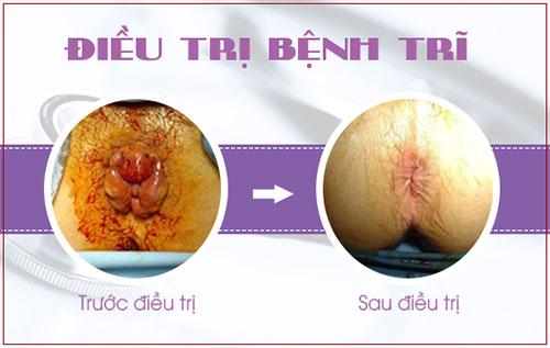 trước và sau khi điều trị bệnh trĩ