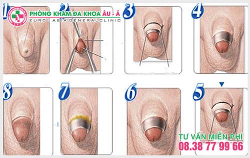 Tiểu phẫu cắt hẹp bao quy đầu như thế nào?