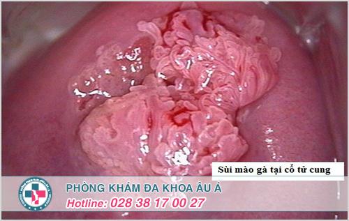 Một số hình ảnh bệnh sùi mào gà ở cổ tử cung nữ giới