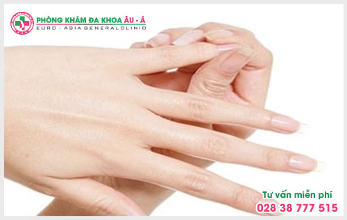 Lý do mắc bệnh chàm khô đầu ngón tay