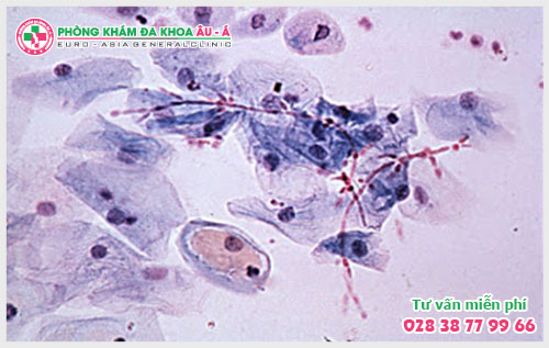 Nguy hại và phương pháp điều trị bệnh nấm Candida