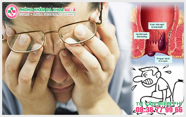 Cần cảnh giác với những tác hại do trĩ nội gây ra