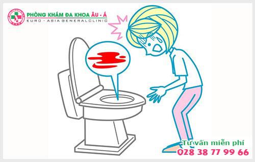 Chảy máu nhiều khi đi đại tiện là dấu hiệu bệnh gì?