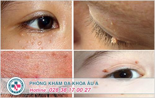 Bệnh sùi mào gà ở mắt và cách điều trị hiệu quả nhất