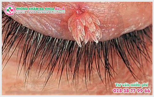 Sùi mào gà ở hậu môn, miệng, mắt: dấu hiệu và nguyên nhân gây bệnh
