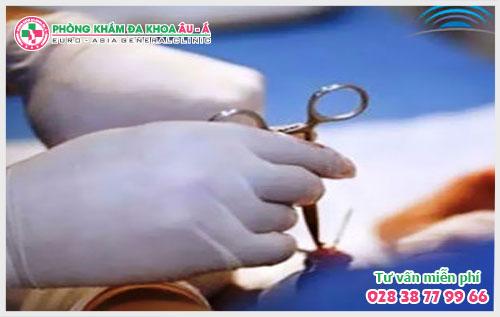 Tiểu phẫu cắt bao quy đầu tại Đa Khoa Âu Á