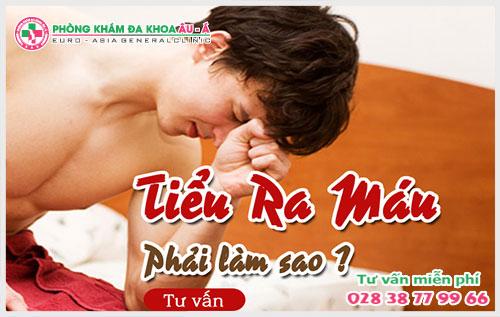 Phương pháp điều trị hiệu quả chứng tiểu ra máu ở nam giới