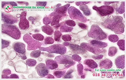 Một số kiến thức cơ bản về nhiễm Mycoplasma