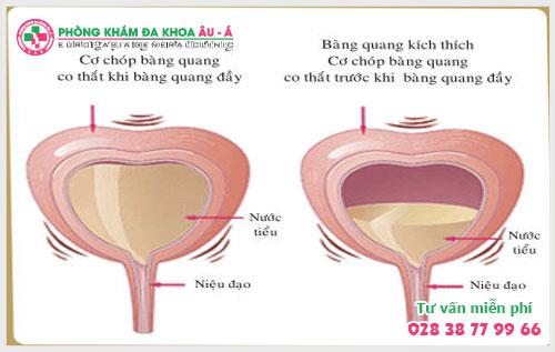 4 triệu chứng viêm bàng quang ở nam giới điển hình dễ nhận biết