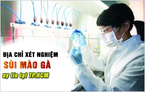 Xét nghiệm sùi mào gà ở đâu tốt nhất TPHCM?